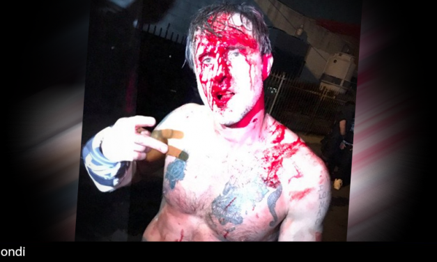 David Arquette issues statement on Deathmatch; says he was injured due to his inexperience