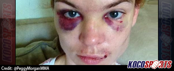 Peggy Morgan shows her battle wounds two days after Invicta FC  brawl with LaterIrene Aldana