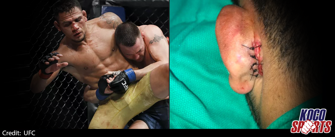 Rafael dos Anjos undergoes plastic surgery after almost losing his ear at UFC 225