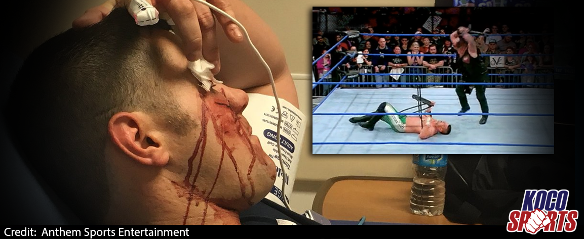 Eddie Edwards hospitalized following baseball bat attack from Sami Callihan