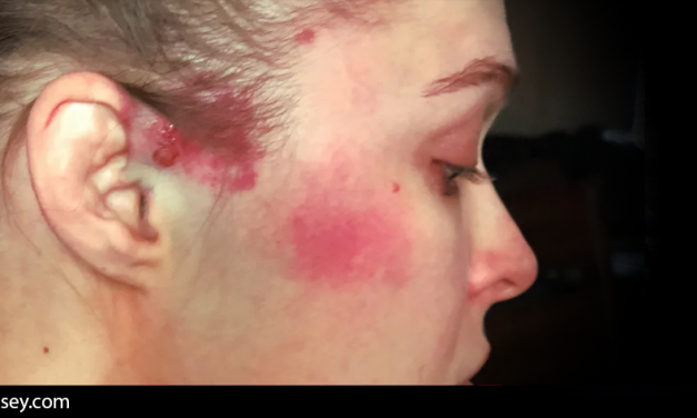 Ronda Rousey shares an image of the damage sustained during Charlotte Flair's attack